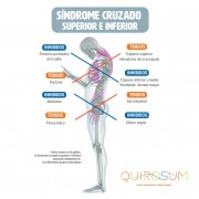 sindrome cruzado superior e inferior